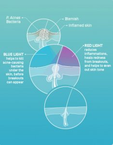 Acne and Red Light Therapy